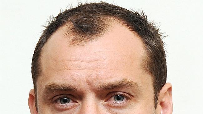 Consulenza fotografica del trapianto capelli