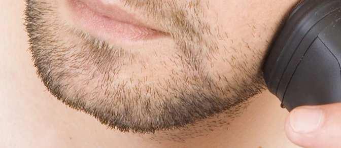 Si può fare il trapianto capelli sulla barba?