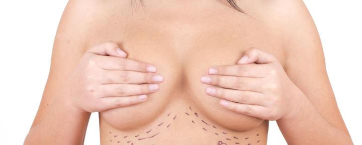 Le migliori protesi seno per la mastoplastica